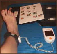 Exogen Bone Stimulator